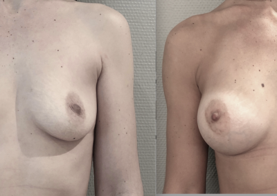 A…36 ans augmentation mammaire par implant anatomique de 360 cc