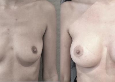 H…32 ans Augmentation mammaire par implant anatomique 335 cc