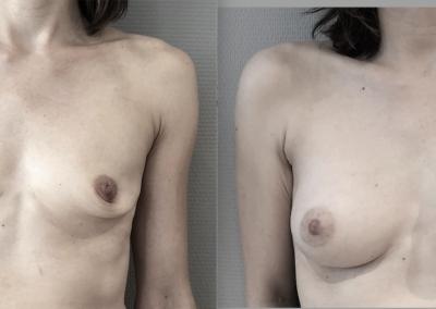L…39 ans Augmentation mammaire implant anatomique 260 cc