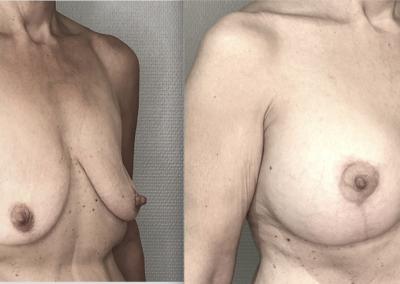N… 50 ans poitrine tombante et petite traitée par mastopexie (lifting) de la poitrine avec implants de 320 ml